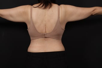 56 year old female, bra line back lift 938126