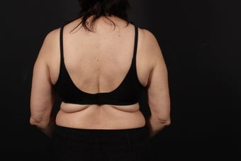 56 year old female, bra line back lift before 938126