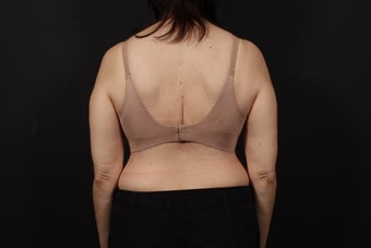 56 year old female, bra line back lift after 938126