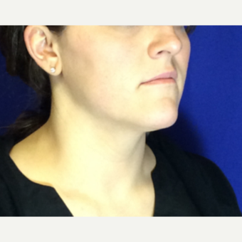 25-34 year old woman treated with Ultherapy Lower Face after 3185690
