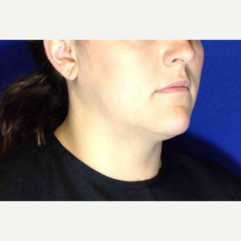 25-34 year old woman treated with Ultherapy Lower Face before 3185690