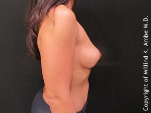 Female with Breast Implant Removal 1129469