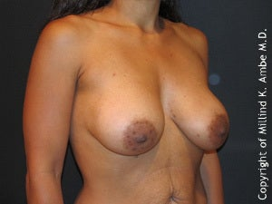 Female with Breast Implant Removal before 1129469