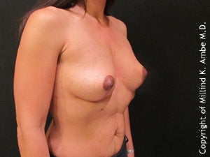Female with Breast Implant Removal after 1129469