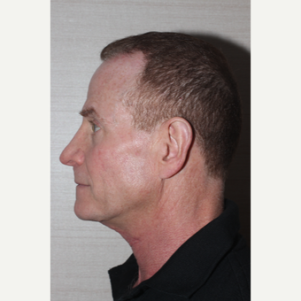 45-54 year old man treated with Neck Lift after 3130051