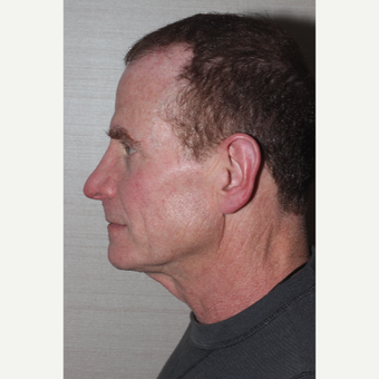 45-54 year old man treated with Neck Lift before 3130051