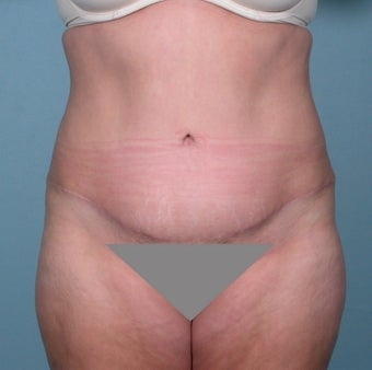 No Drain Tummy tuck after 379232