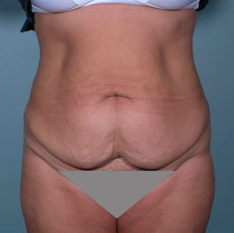 No Drain Tummy tuck before 379232