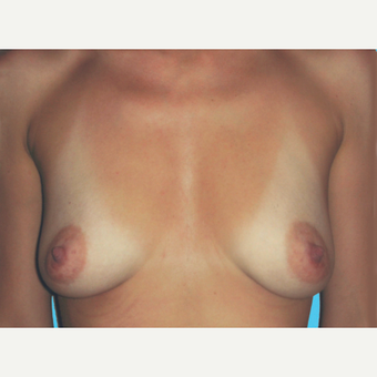 Breast Augmentation before 3732708