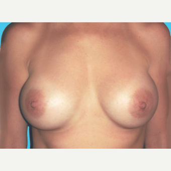 Breast Augmentation after 3732708