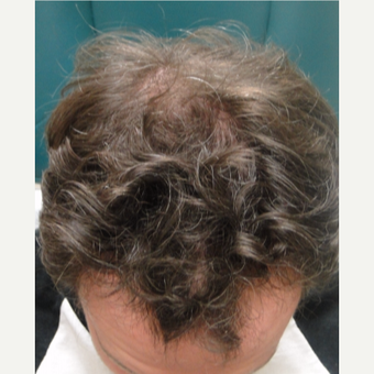 25-34 year old man treated with PRP for Hair Loss before 3517832