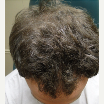 25-34 year old man treated with PRP for Hair Loss after 3517832