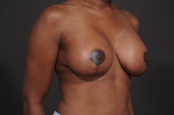 Breast Lift with Augmentation after 1436961