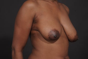Breast Lift with Augmentation before 1436961