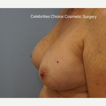 55-64 year old woman treated with Breast Implant Removal