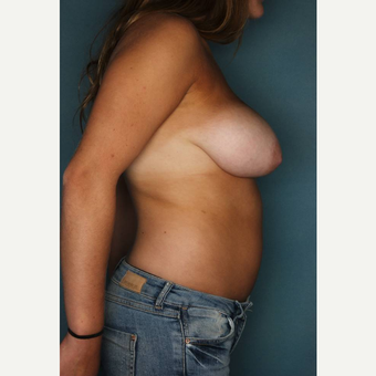 18-24 year old woman treated with Breast Reduction before 3442332