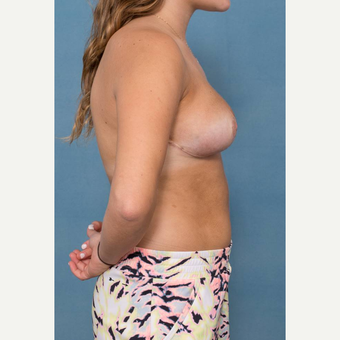 18-24 year old woman treated with Breast Reduction after 3442332