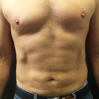 35-44 year old man treated with truSculpt
