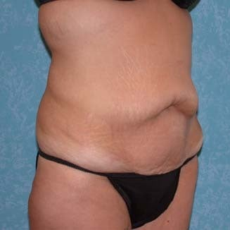 Circumferential Body Lift with Buttock Augmentation before 857483