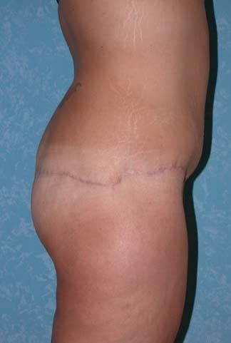 Circumferential Body Lift with Buttock Augmentation 857483