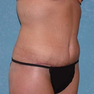 Circumferential Body Lift with Buttock Augmentation after 857483