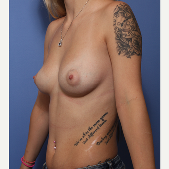 18-24 year old woman treated with Breast Augmentation before 3505965
