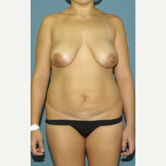 18-24 year old woman treated with Breast Lift before 3475363