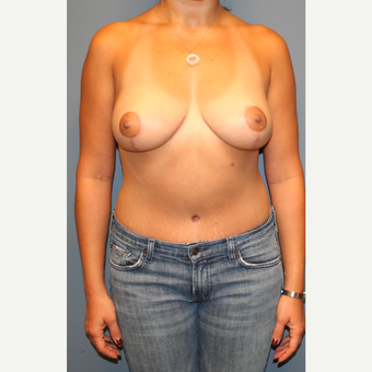 18-24 year old woman treated with Breast Lift after 3475363