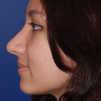 18-24 year old woman treated with Rhinoplasty after 3624050