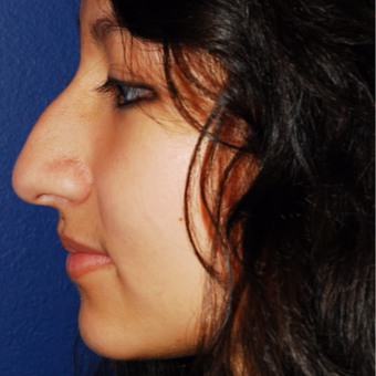 18-24 year old woman treated with Rhinoplasty before 3624050