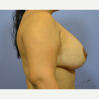 25-34 year old woman treated with Breast Lift after 3329478