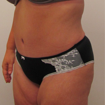 Tummy Tuck for This 42 Year Old Woman after 3181969