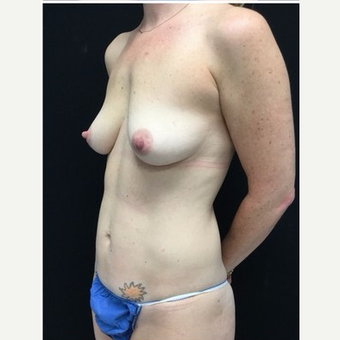 35-44 year old woman treated with Mommy Makeover before 3185523