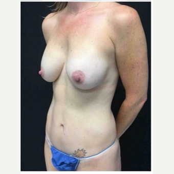 35-44 year old woman treated with Mommy Makeover after 3185523