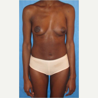 30 year old woman treated with PAP flap Breast Reconstruction after 3725386
