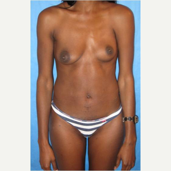 30 year old woman treated with PAP flap Breast Reconstruction before 3725386