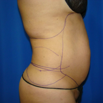35-44 year old woman treated with Smart Lipo before 3593196