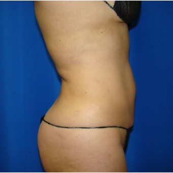 35-44 year old woman treated with Smart Lipo after 3593196