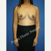 45-54 year old woman treated with Breast Implants before 3811695