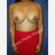 45-54 year old woman treated with Breast Implants after 3811695