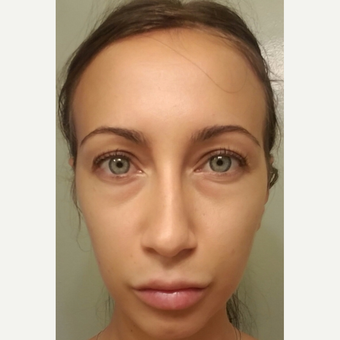 29 year old female, with under eye bags and dark circles, underwent lower blepharoplasty. before 3693667