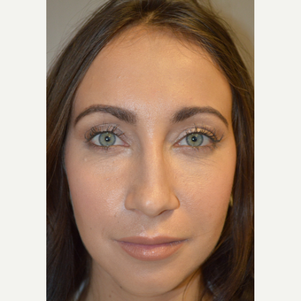 29 year old female, with under eye bags and dark circles, underwent lower blepharoplasty. after 3693667