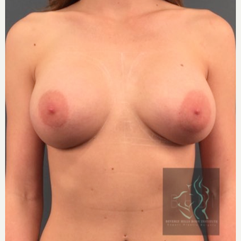 25-34 year old woman treated with Breast Implants before 3110462