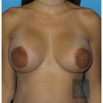 25-34 year old woman treated with Breast Implants after 3110462