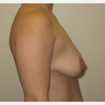25-34 year old woman treated with Breast Implants before 3423757