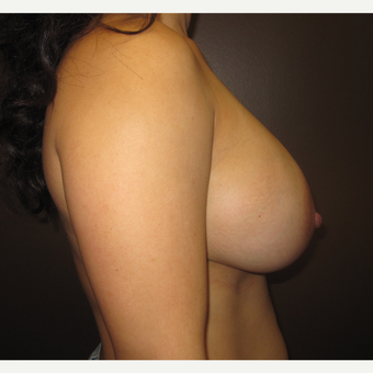 25-34 year old woman treated with Breast Implants after 3423757