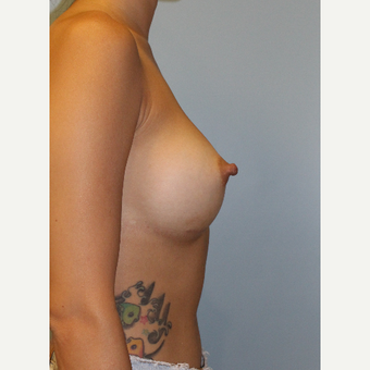 25-34 year old woman treated with Breast Augmentation after 3212626