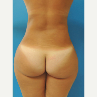 45-54 year old woman treated with Brazilian Butt Lift after 3107901