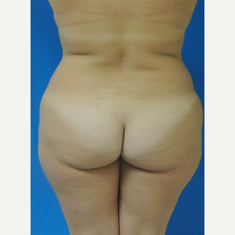 45-54 year old woman treated with Brazilian Butt Lift before 3107901