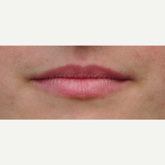 Natural lip enhancement with one syringe before 3650400